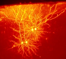 The Stem Cell revolution: growing brain cells to repair